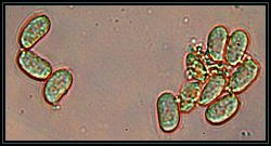 Spores in Melzer's